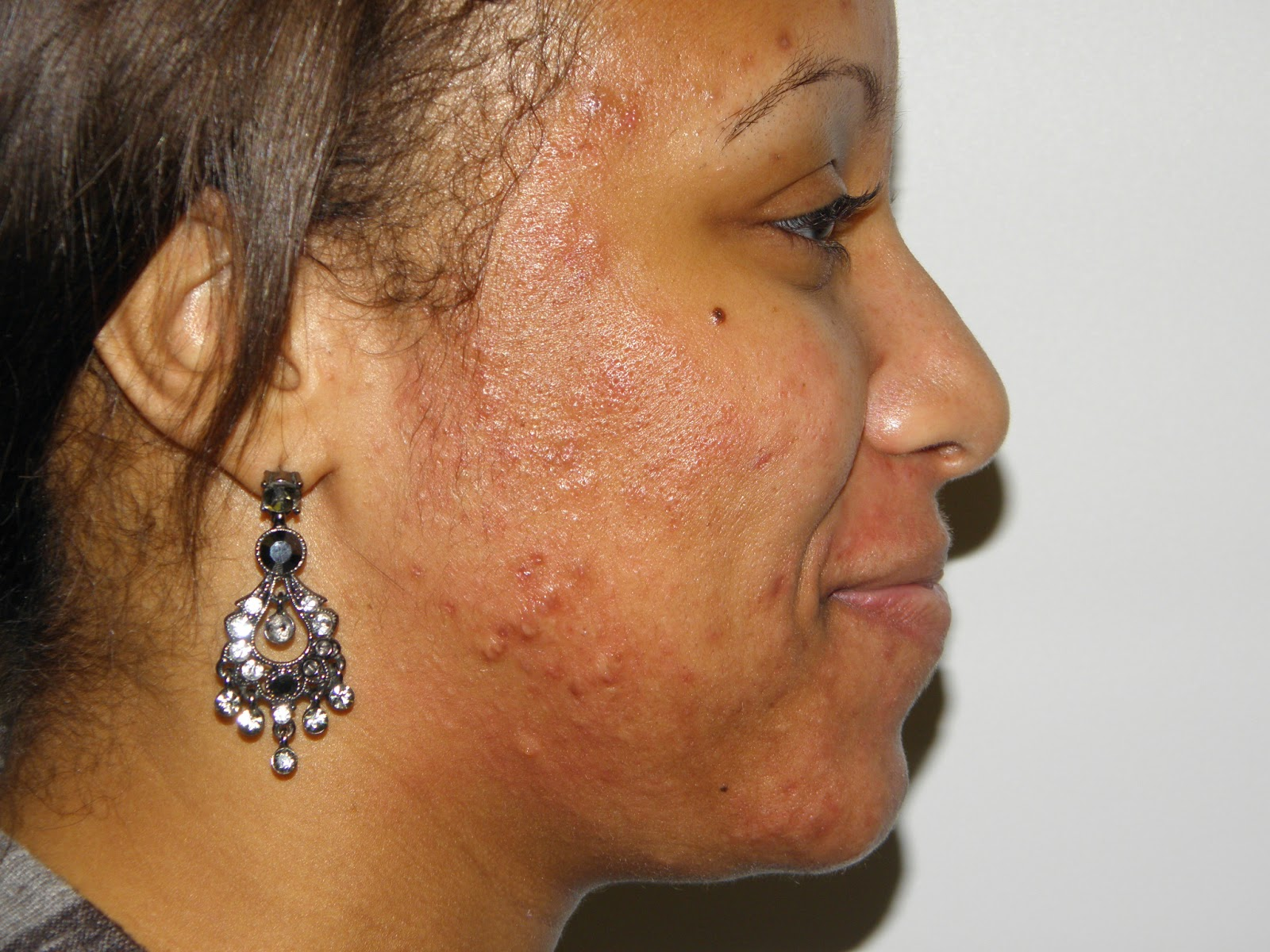 Beauty DIY: Home Made Recipes For Treating Acne (Pimples)