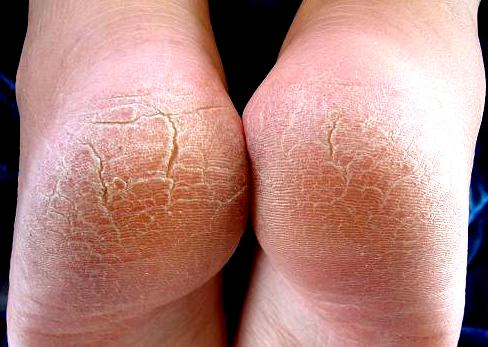 Dealing With Cracked Feet